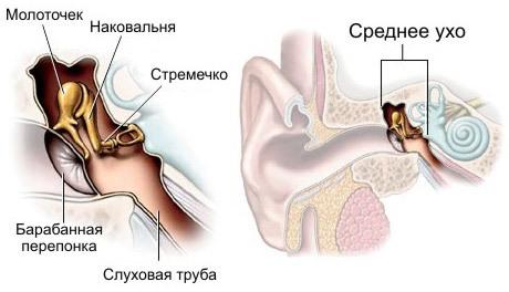Тимпанопластика или операция по восстановлению барабанной перепонки в ухе