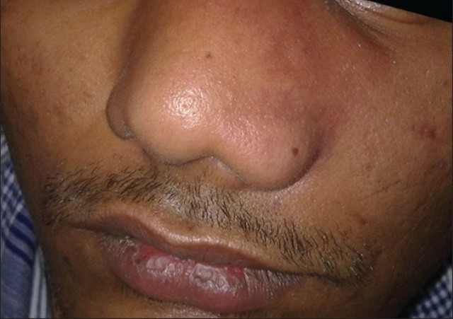 Какие бывают заболевания носа – проблемы и болезни с симптомами