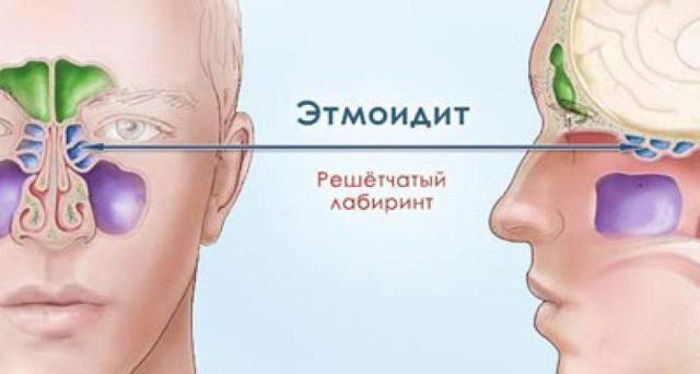Что такое катаральный синусит – симптомы и лечение