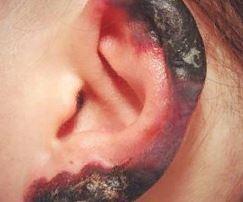 Обморожение мочки уха – что делать и как лечить