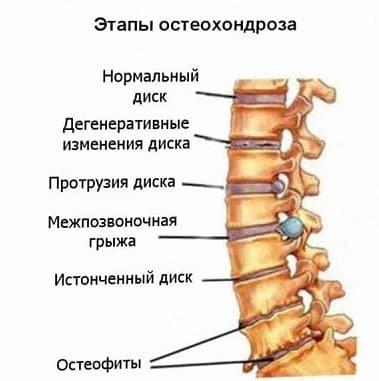 Стук и пульсация в левом или правом ухе
