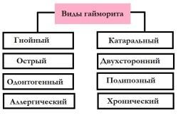 Острый гайморит и верхнечелюстной синусит (двусторонний, лево и правосторонний)