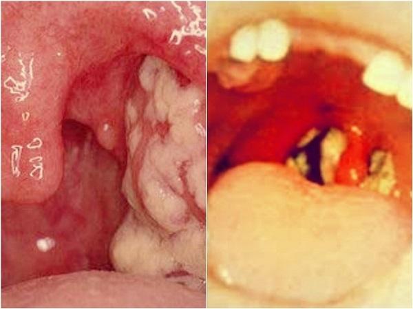 Гнойный фарингит – симптомы и лечение фолликулярного заболевания