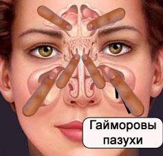 Чем полоскать и промывать нос при заложенности
