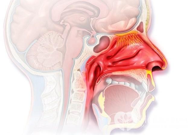 Субатрофический ринофарингит и назофарингит – симптомы и лечение