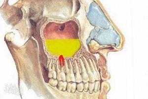 Что такое гайморит - верхнечелюстной синусит или воспаление гайморовых пазух