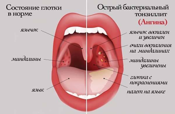Тонзиллит у детей – профилактика и температура у ребенка