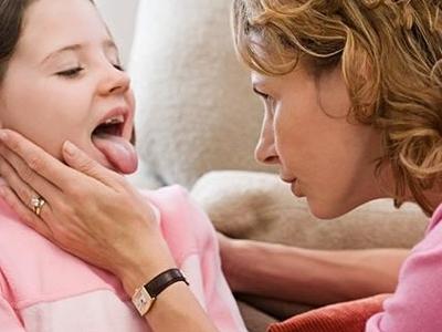 Как долго лечится ангина у взрослых (сколько дней)