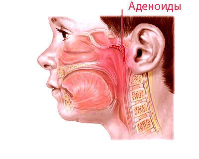 Е.О. Комаровский – лечение аденоидов у детей без операции