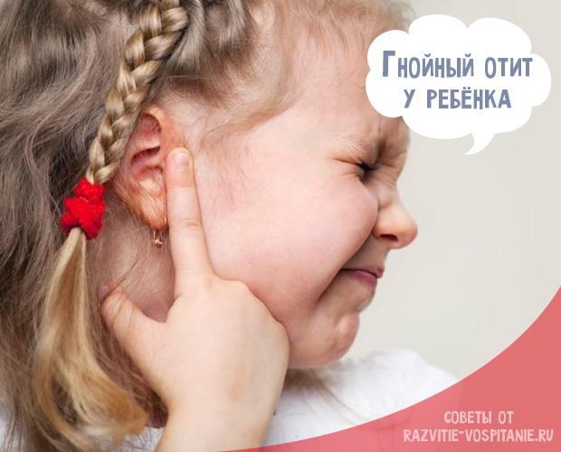 Гнойный отит у ребенка - симптомы и лечение детей