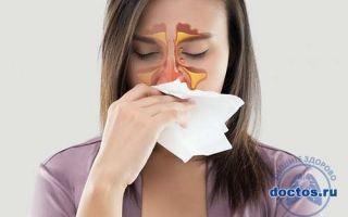 Хронический синусит – симптомы и причины появления у взрослых