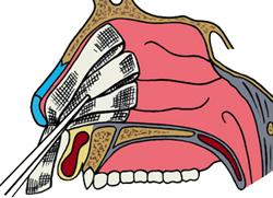 Кровь из носа - причины кровотечений и способы лечения