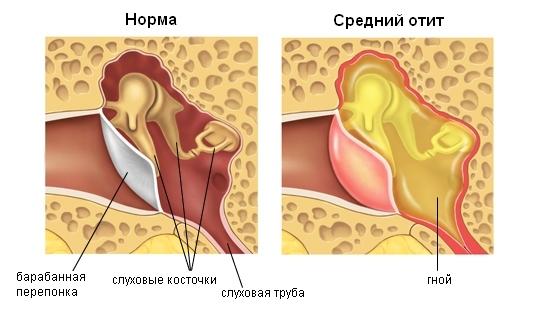 Какие бывают заболевания уха: названия и симптомы, лечение