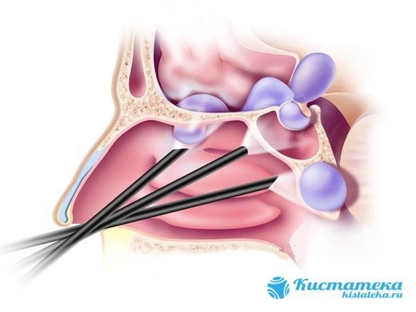 Эндоскопическое удаление кисты в гайморовой и верхнечелюстной пазухе