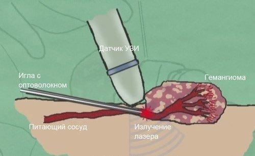 Опухоль в горле - признаки доброкачественной и злокачественной гемангиомы