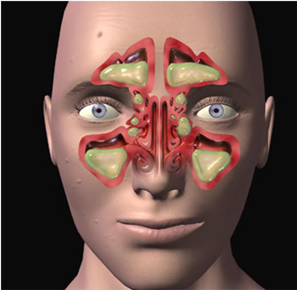 Что делать, если болят пазухи носа – лучшие методы лечения