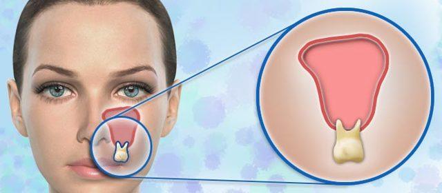 Перфорация верхнечелюстной или гайморовой пазухи – диагностика и закрытие