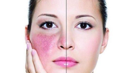 Почему болит кончик носа - причины воспаления и покраснения