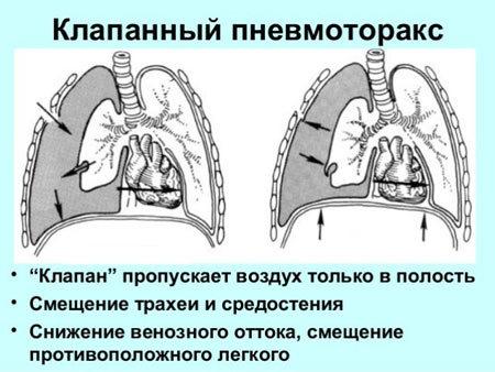 Кровь из горла при отхаркивании - причины кровотечения