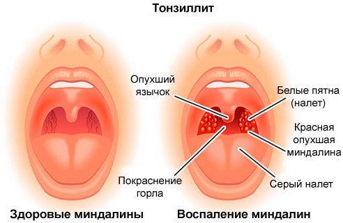 Как лечить хронический тонзиллит народными средствами и методами