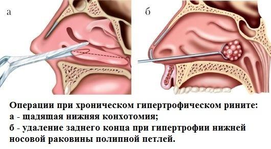 Хронический гипертрофический ринит - операция и лечение народными средствами