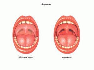 Что такое фарингит (воспаление глотки) - описание болезни
