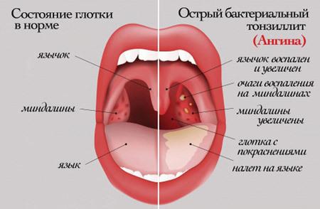 Как и чем полоскать горло при тонзиллите в домашних условиях