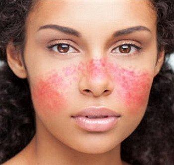 Красный нос или гиперемия – что это такое