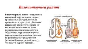 Капли в нос при вазомоторном рините - список лекарств