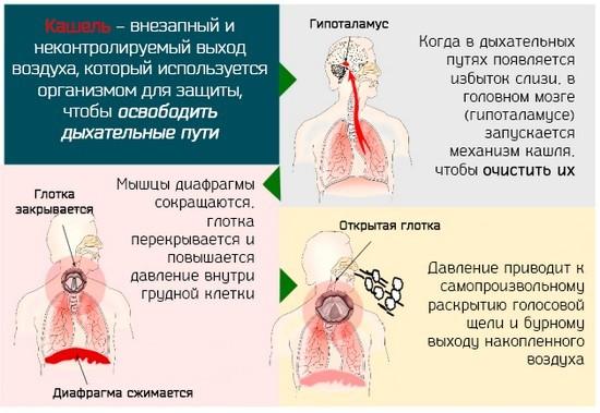 Кашель: симптомы и разновидности, способы лечения и профилактики