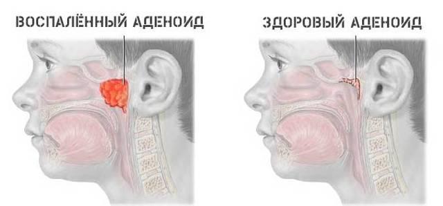 Инфекции горла - симптомы и список инфекционных заболеваний горла