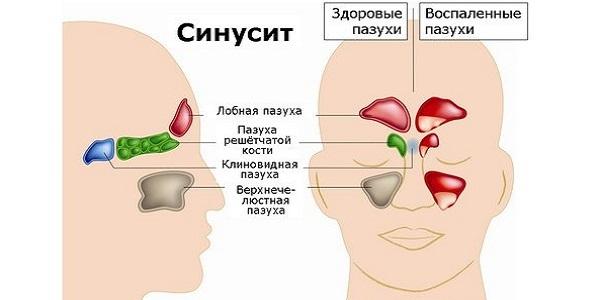 Лечение хронического синусита у взрослых – лучшие методы