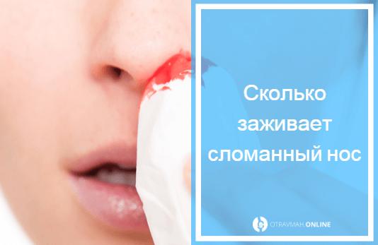 Открытый и закрытый перелом носа – сколько заживает