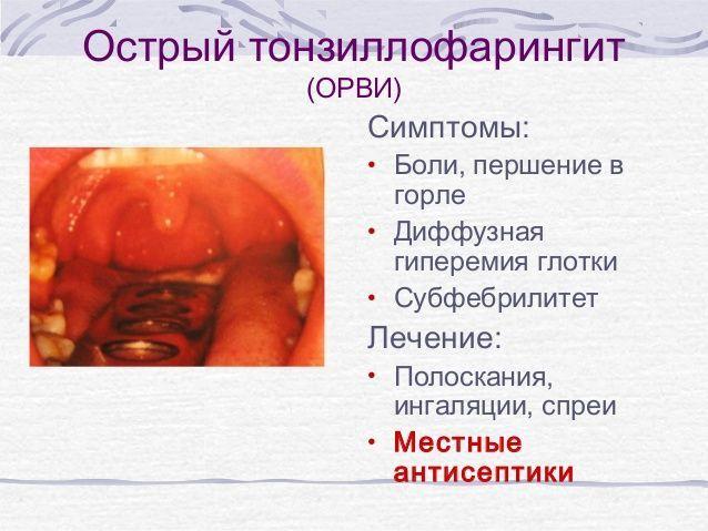 Острый тонзиллофарингит – симптомы и лечение детей и взрослых