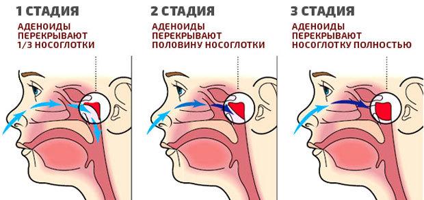 Удаление аденоидов лазером – лазеротерапия для лечения (аденотомия)