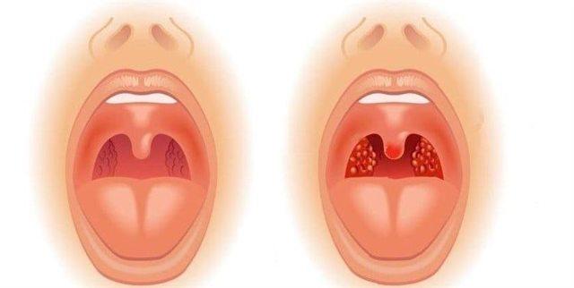 Рыхлые миндалины - что это значит, причины и лечение