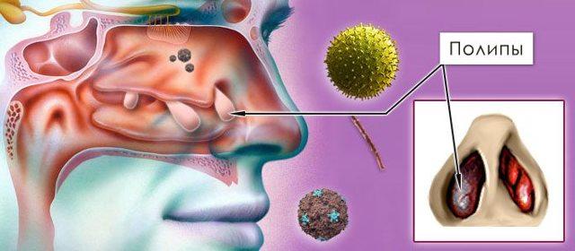 Полипозный риносинусит – симптомы и лечение хронического заболевания