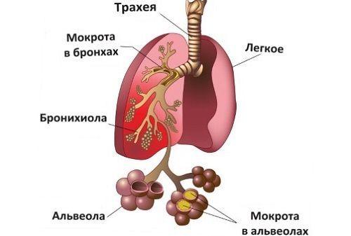 Чем лечить кашель при беременности – средства и лекарства