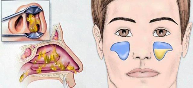 Какие бывают виды гайморита и как их лечить