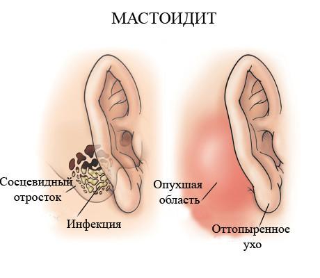 Что такое мастоидит - его симптомы и лечение