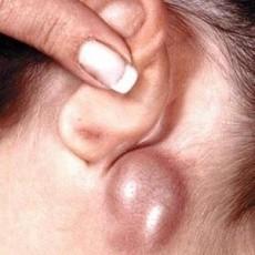 Лечение рака горла – можно ли его вылечить?