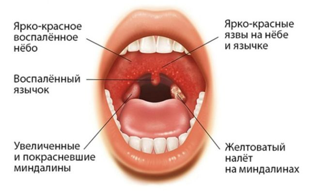 Народные средства для лечения гнойной ангины у взрослых
