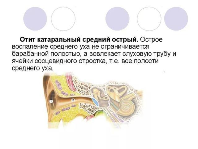 Острый средний катаральный отит (двухсторонний, левосторонний и правосторонний)