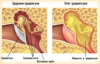 Острый экссудативный средний серозный отит – симптомы и лечение