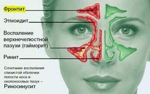 Что такое острый риносинусит – симптомы и лечение