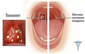 Грибковая ангина - симптомы и лечение кандидозного заболевания