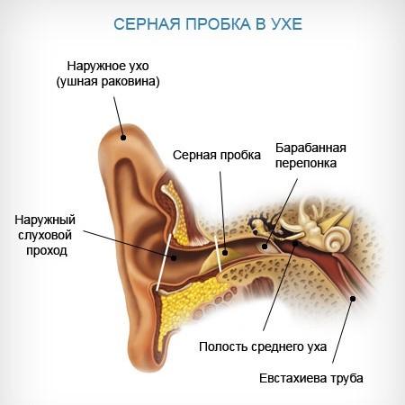 Признаки и симптомы серной пробки в ухе у взрослых
