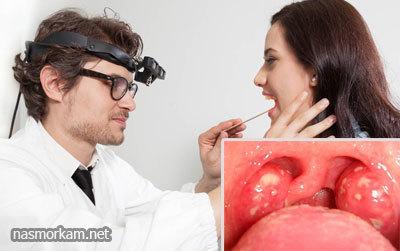 Как лечить гланды - что делать, если болят миндалины