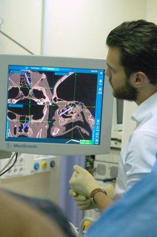 Что такое острый фронтит – симптомы и лечение