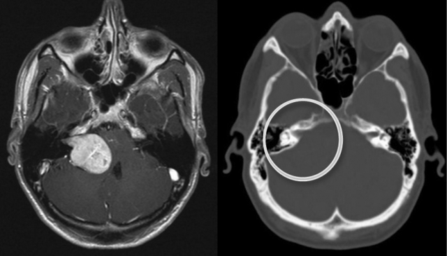 Невринома слухового нерва - симптомы и лечение акустической болезни